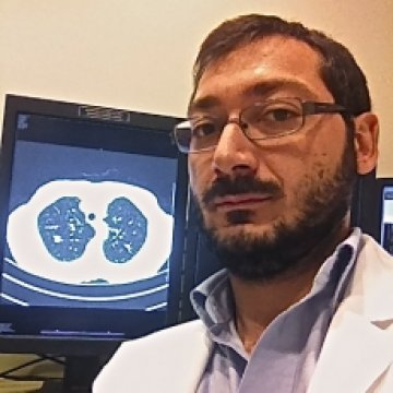 Gianluca Argentieri, MD